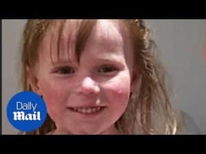 Girl with serious skin condition finds relief through skiing – Daily Mail